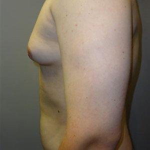 manhattan gynecomastia surgery before 6